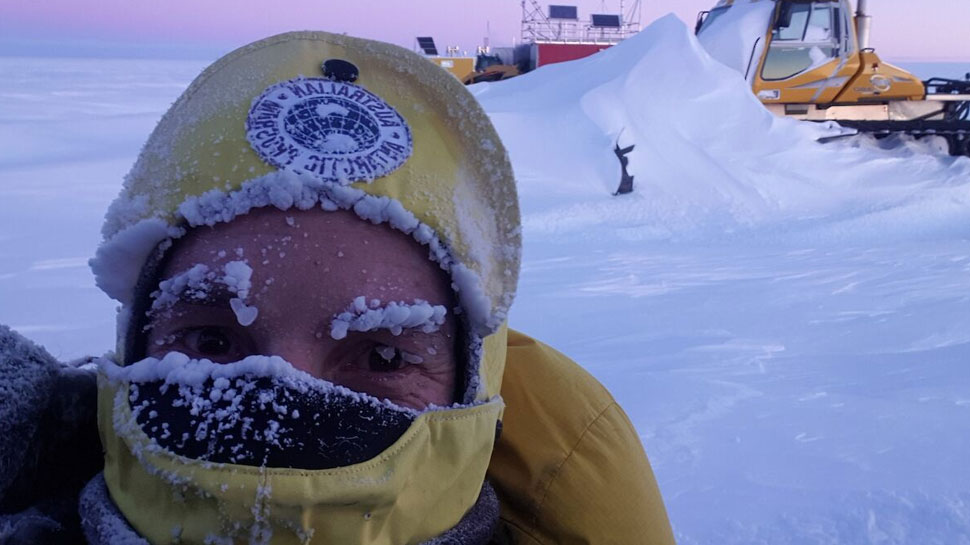 Why Appendix removed necessary before you go in Antarctica?